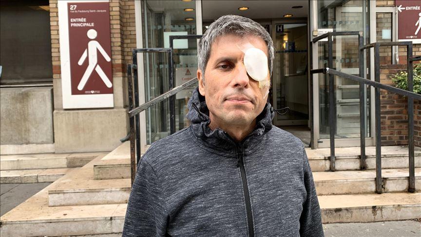 Fransa'da AA Foto Muhabiri Yalçın'ın yaralanmasına neden olan polis şiddetine takipsizlik