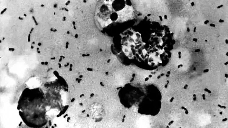 Tarihin en ölümcül salgınlarından bubonik veba yeniden Çin'de ortaya çıktı